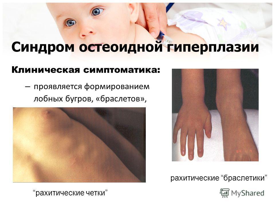 Синдром остеоидной гиперплазии Клиническая симптоматика: – проявляется формированием лобных бугров, «браслетов», «четок» рахитические четки рахитические браслетики