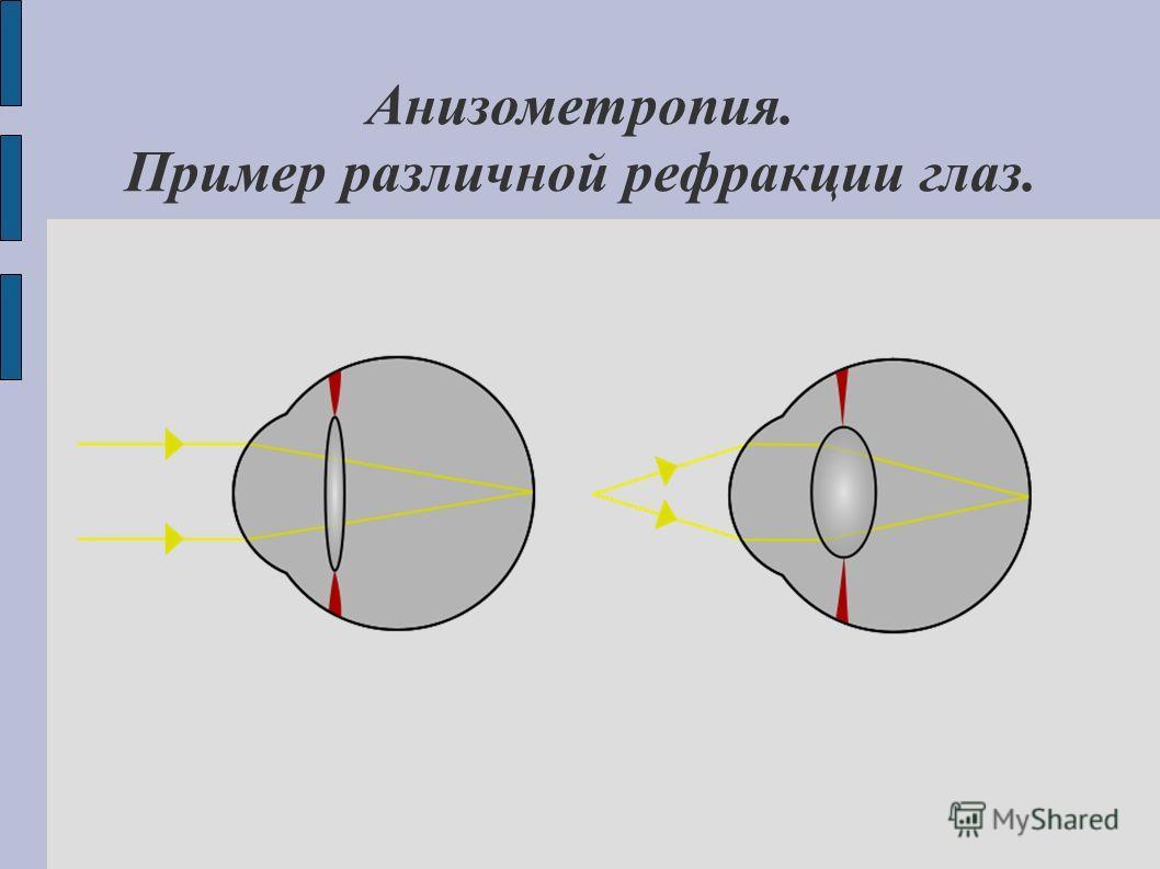Анизометропия. Пример различной рефракции глаз.