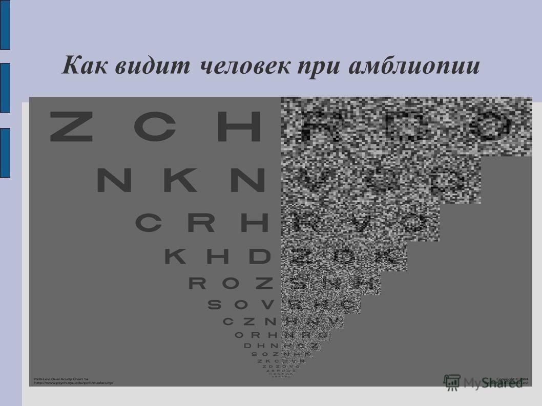 Как видит человек при амблиопии