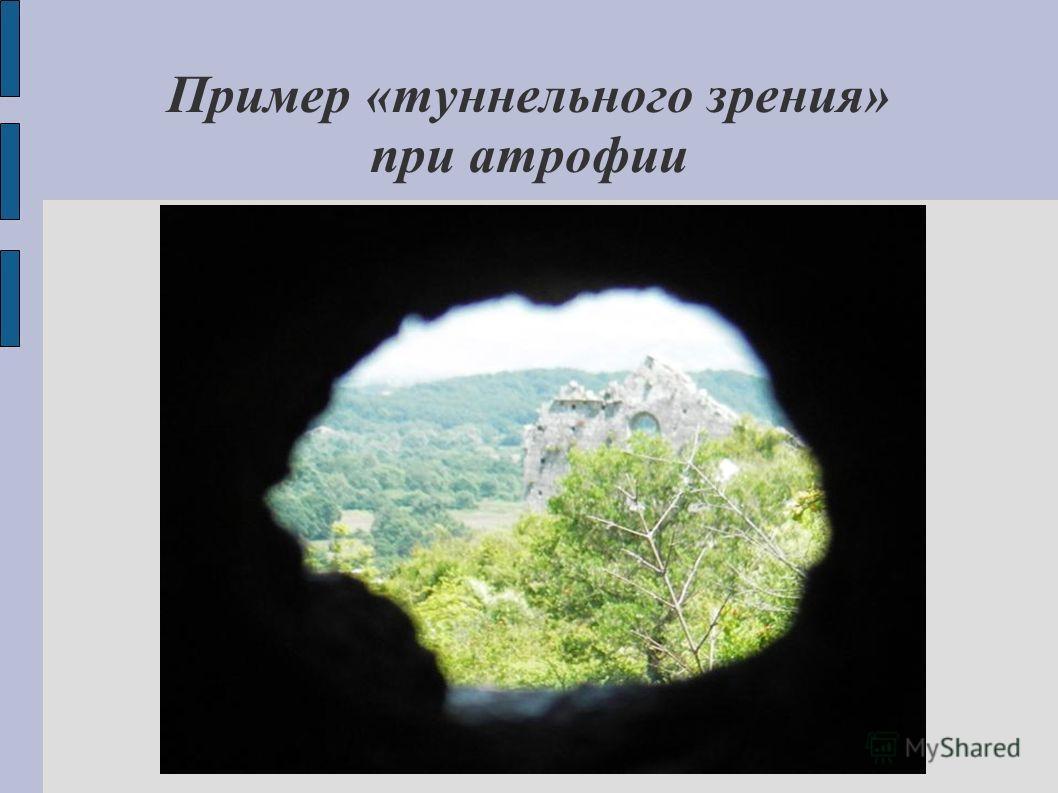 Пример «туннельного зрения» при атрофии