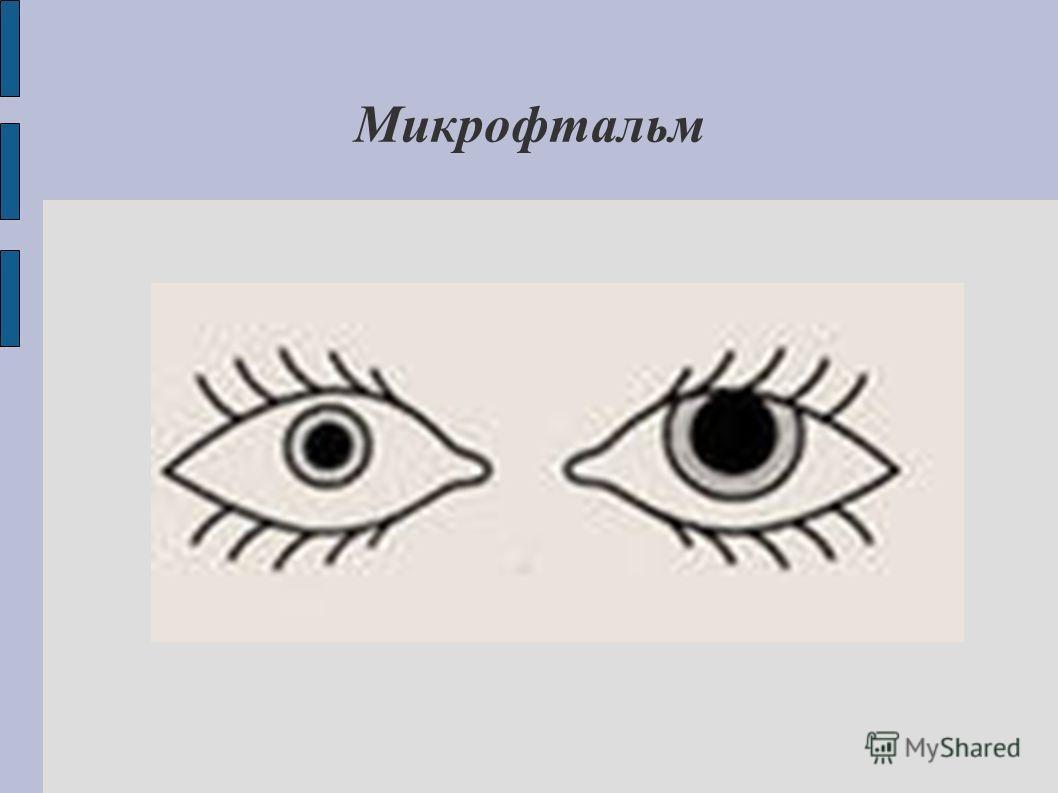 Микрофтальм