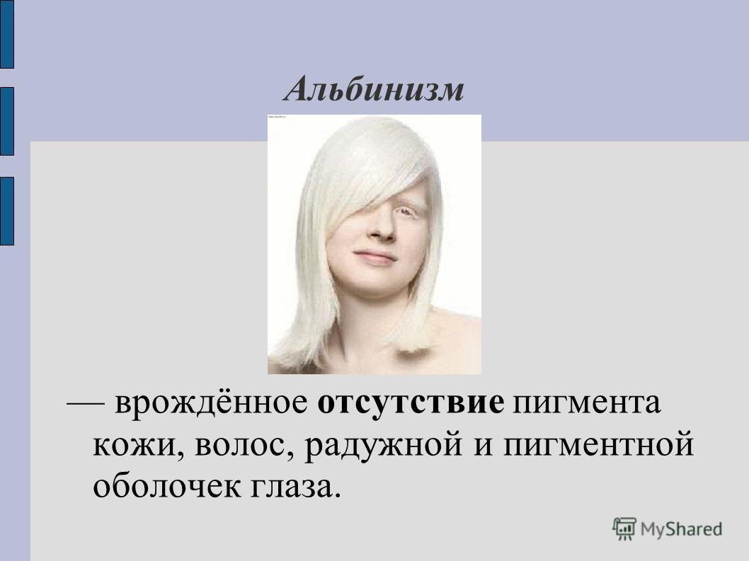 Альбинизм врождённое отсутствие пигмента кожи, волос, радужной и пигментной оболочек глаза.