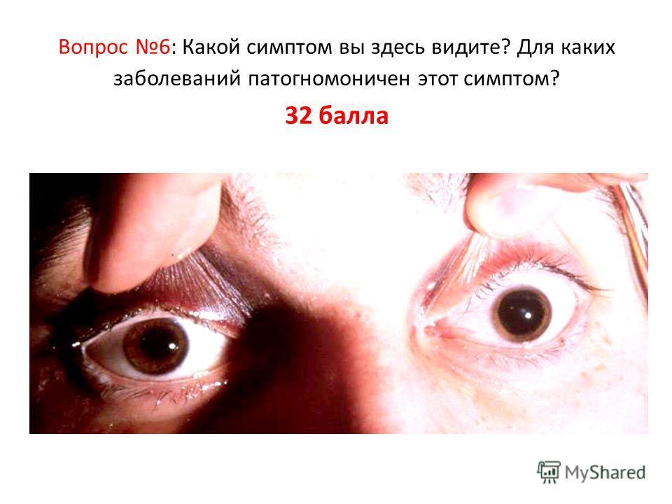 Вопрос 6: Какой симптом вы здесь видите? Для каких заболеваний патогномоничен этот симптом? 32 балла