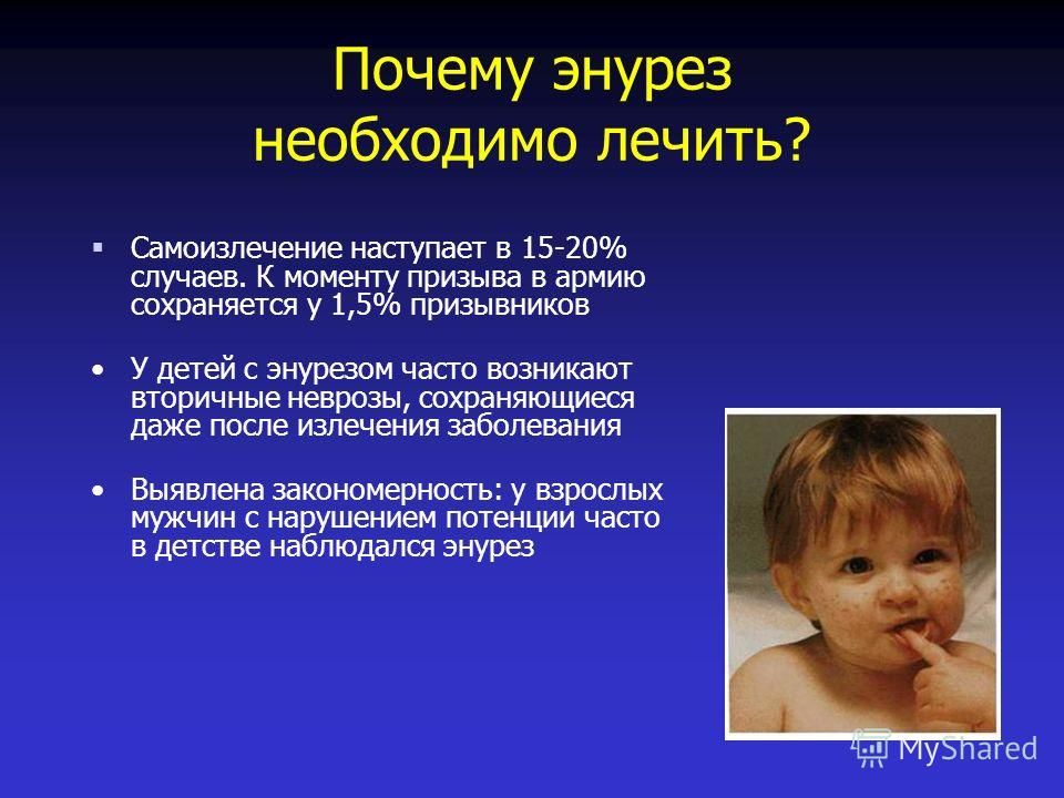 Лечение детского энуреза в домашних условиях 800