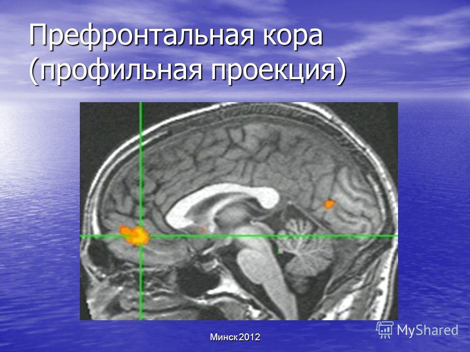 Минск 2012 Префронтальная кора (профильная проекция)