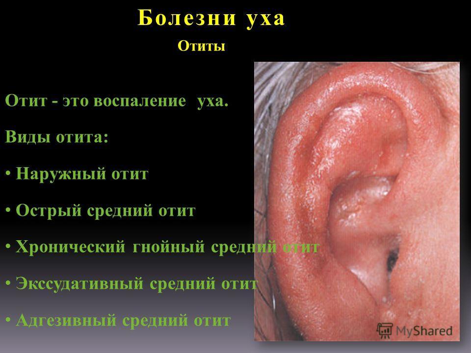 Болезни уха Отиты Отит - это воспаление уха. Виды отита: Наружный отит Острый средний отит Хронический гнойный средний отит Экссудативный средний отит Адгезивный средний отит