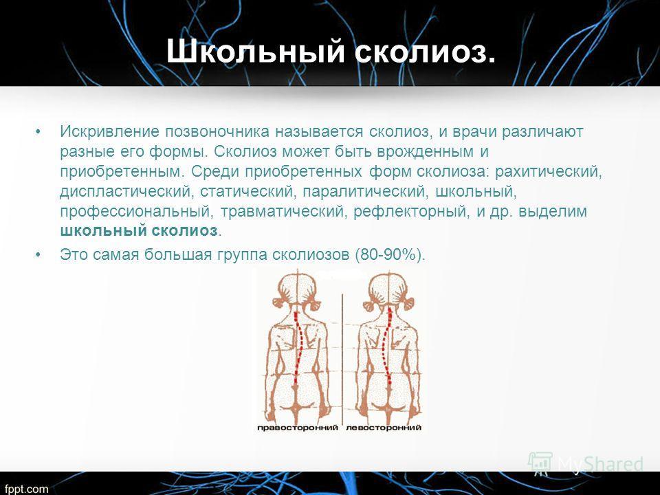 Школьный сколиоз. Искривление позвоночника называется сколиоз, и врачи различают разные его формы. Сколиоз может быть врожденным и приобретенным. Среди приобретенных форм сколиоза: рахитический, диспластический, статический, паралитический, школьный,