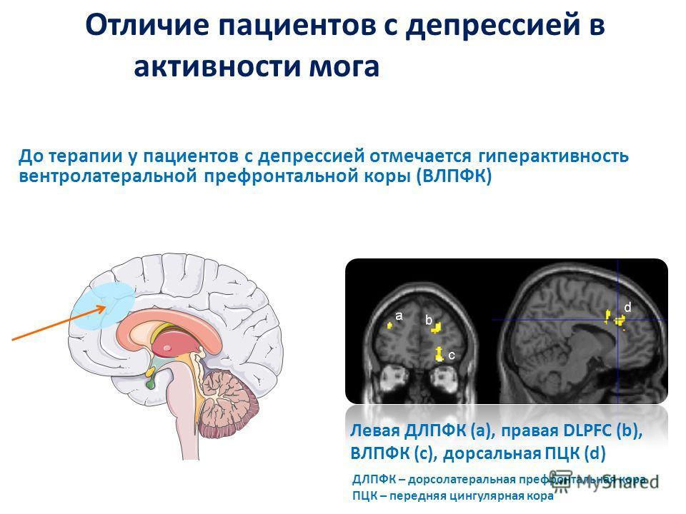 Отличие пациентов с депрессией в активности мога до терапии До терапии у пациентов с депрессией отмечается гиперактивность вентролатеральной префронтальной коры (ВЛПФК) Левая ДЛПФК (a), правая DLPFC (b), ВЛПФК (c), дорсальная ПЦК (d) ДЛПФК – дорсолат