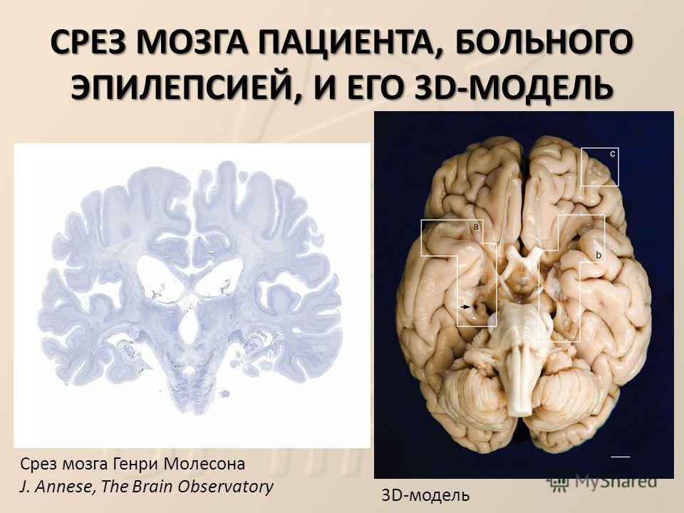 СРЕЗ МОЗГА ПАЦИЕНТА, БОЛЬНОГО ЭПИЛЕПСИЕЙ, И ЕГО 3D-МОДЕЛЬ Срез мозга Генри Молесона J. Annese, The Brain Observatory 3D-модель