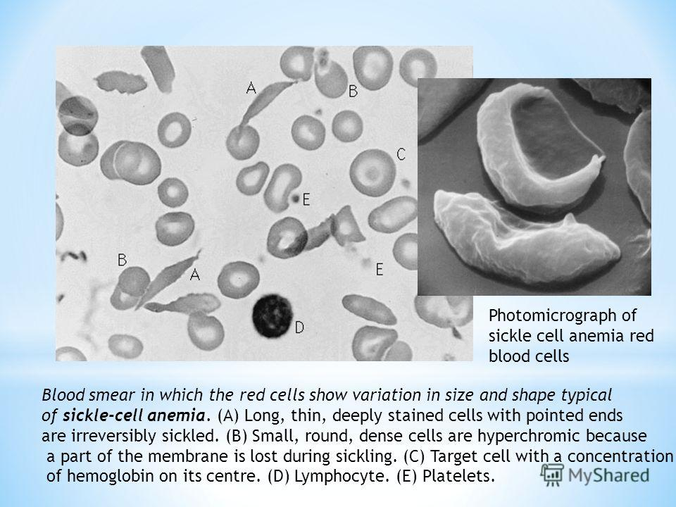 Blood smear in which the red cells show variation in size and shape typical of sickle-cell anemia. (A) Long, thin, deeply stained cells with pointed ends are irreversibly sickled. (B) Small, round, dense cells are hyperchromic because a part of the m