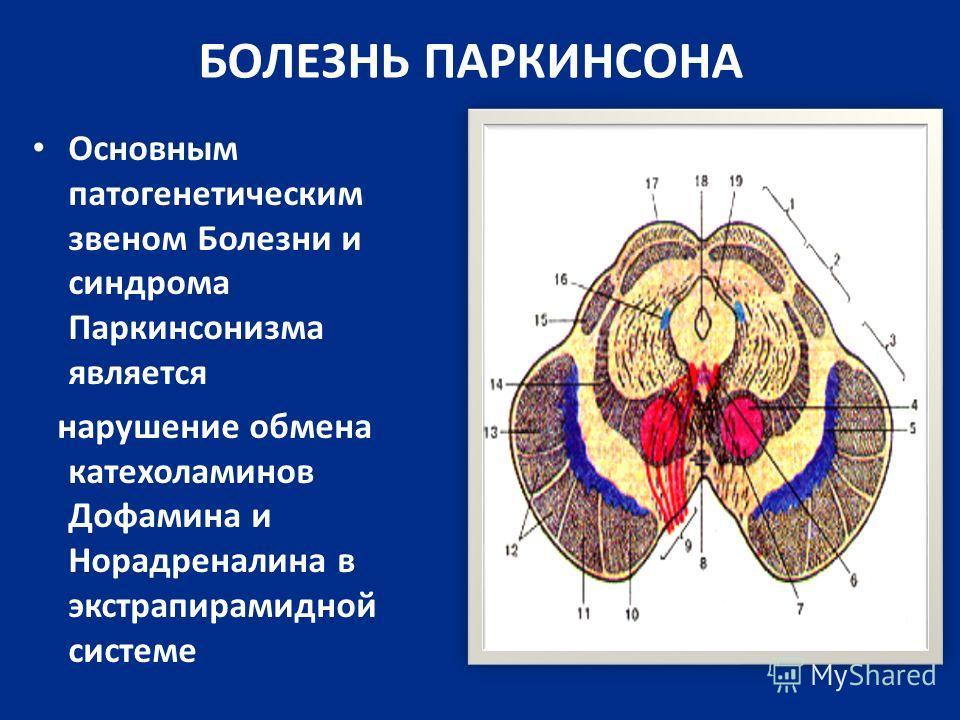 БОЛЕЗНЬ ПАРКИНСОНА Основным патогенетическим звеном Болезни и синдрома Паркинсонизма является нарушение обмена катехоламинов Дофамина и Норадреналина в экстрапирамидной системе