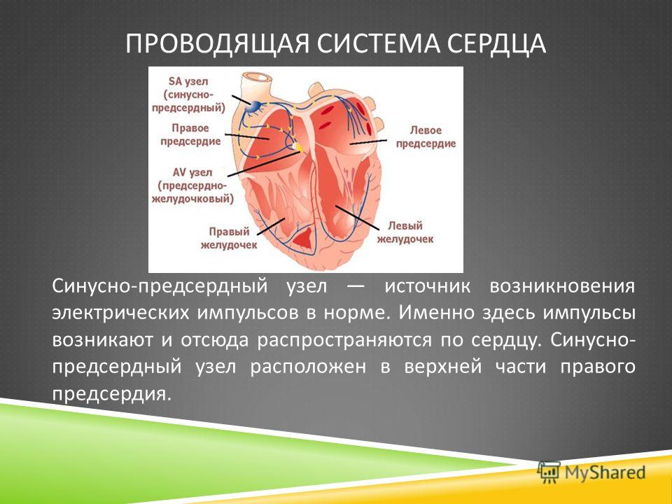 ПРОВОДЯЩАЯ СИСТЕМА СЕРДЦА Синусно-предсердный узел источник возникновения электрических импульсов в норме. Именно здесь импульсы возникают и отсюда распространяются по сердцу. Cинусно- предсердный узел расположен в верхней части правого предсердия.