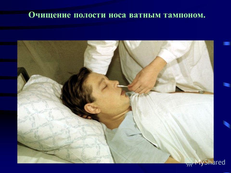 Очищение полости носа ватным тампоном.