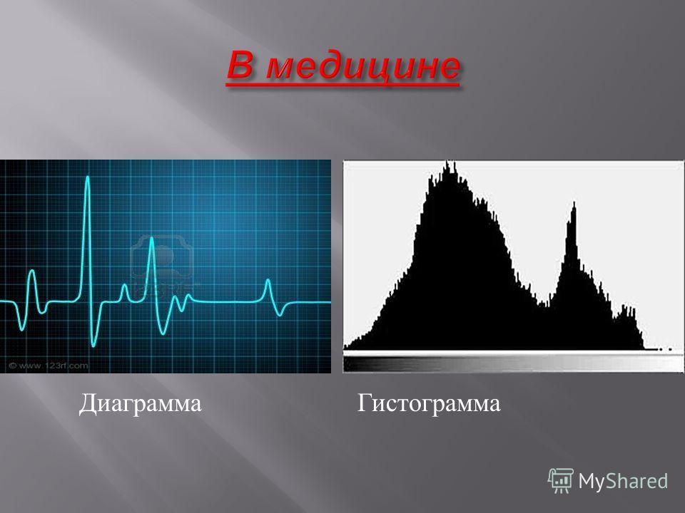 Диаграмма Гистограмма