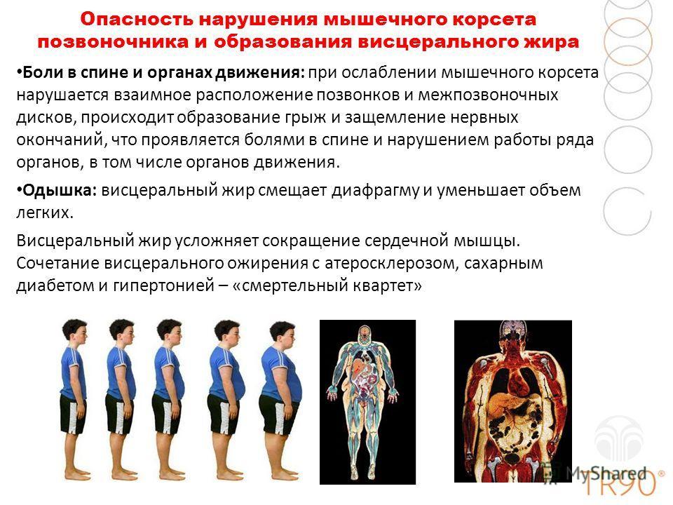 Опасность нарушения мышечного корсета позвоночника и образования висцерального жира Боли в спине и органах движения: при ослаблении мышечного корсета нарушается взаимное расположение позвонков и межпозвоночных дисков, происходит образование грыж и за
