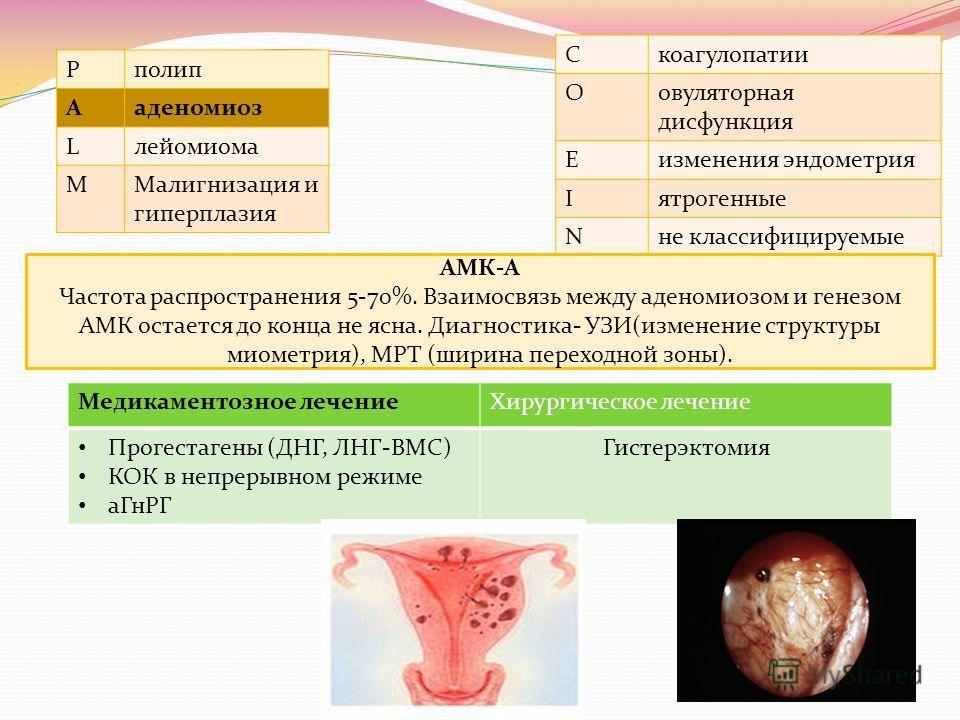 Pполип Aаденомиоз Lлейомиома MМалигнизация и гиперплазия Cкоагулопатии Oовуляторная дисфункция Eизменения эндометрия Iятрогенные Nне классифицируемые АМК-А Частота распространения 5-70%. Взаимосвязь между аденомиозом и генезом АМК остается до конца н
