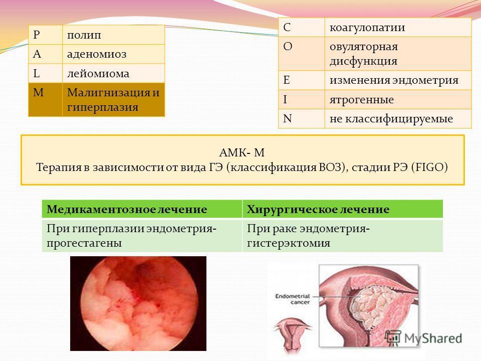 Cкоагулопатии Oовуляторная дисфункция Eизменения эндометрия Iятрогенные Nне классифицируемые Pполип Aаденомиоз Lлейомиома MМалигнизация и гиперплазия АМК- М Терапия в зависимости от вида ГЭ (классификация ВОЗ), стадии РЭ (FIGO) Медикаментозное лечени