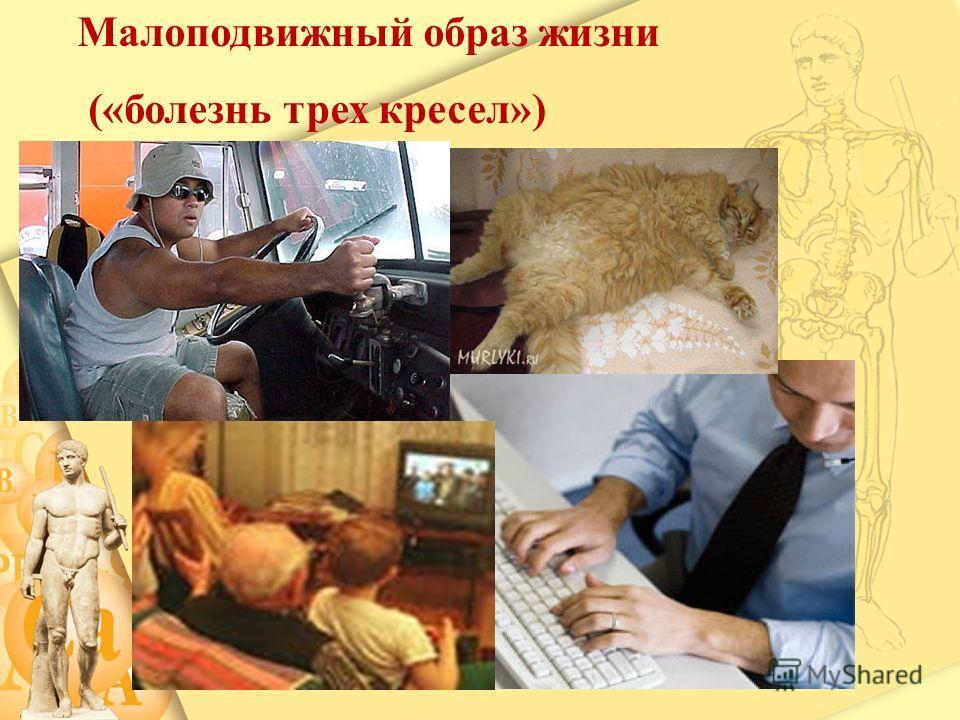 Малоподвижный образ жизни («болезнь трех кресел»)