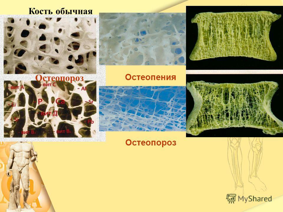 Кость обычная Остеопороз Остеопения