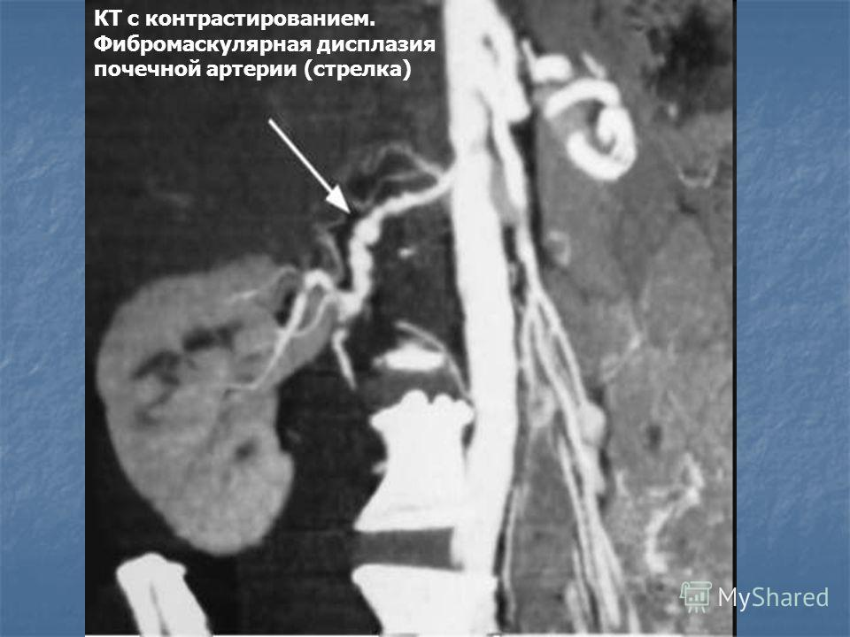 КТ с контрастированием. Фибромаскулярная дисплазия почечной артерии (стрелка)