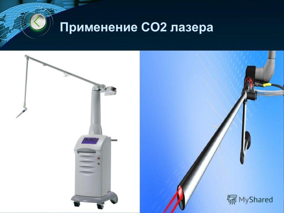LOGO www.themegallery.com Применение СО2 лазера