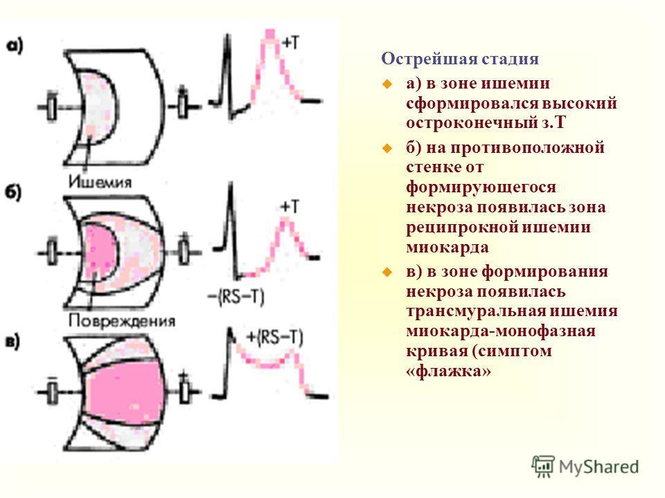 Острейшая стадия u a) в зоне ишемии сформировался высокий остроконечный з.Т u б) на противоположной стенке от формирующегося некроза появилась зона реципрокной ишемии миокарда u в) в зоне формирования некроза появилась трансмуральная ишемия миокарда-