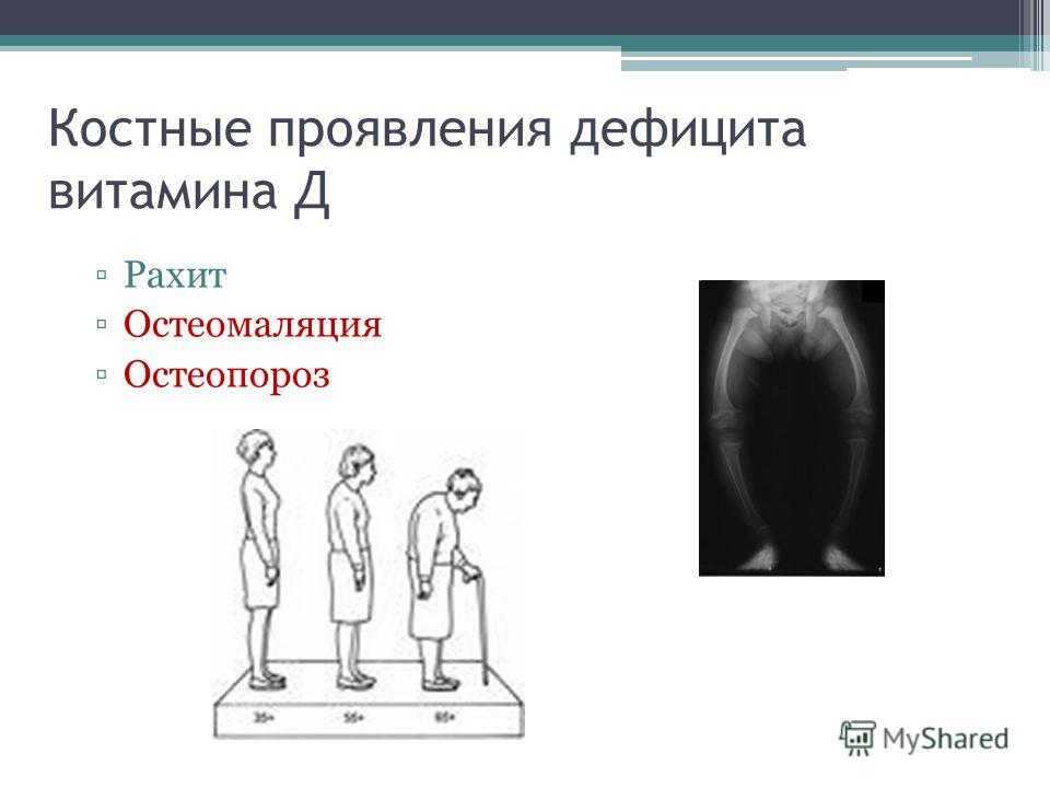 Костные проявления дефицита витамина Д Рахит Остеомаляция Остеопороз