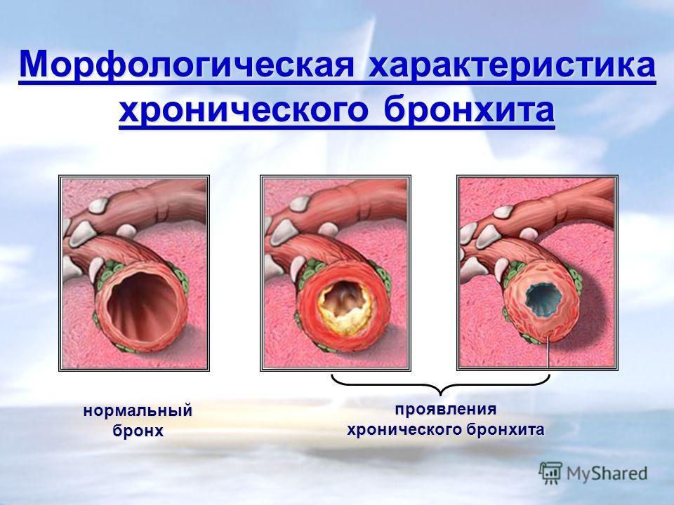 Морфологическая характеристика хронического бронхита нормальныйбронх проявления хронического бронхита