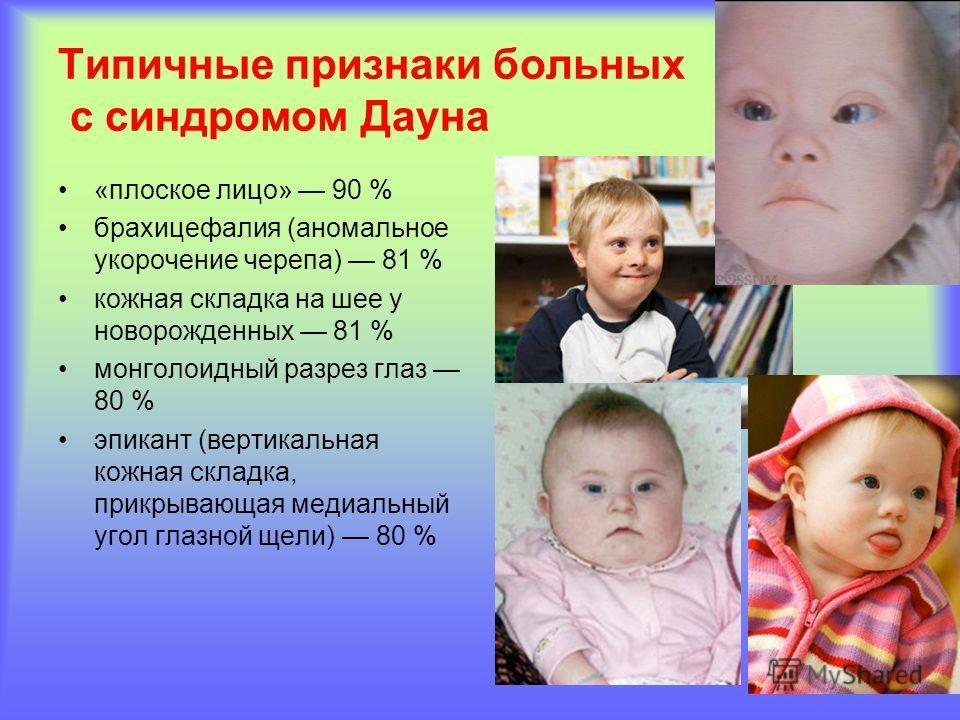 Типичные признаки больных с синдромом Дауна «плоское лицо» 90 % брахицефалия (аномальное укорочение черепа) 81 % кожная складка на шее у новорожденных 81 % монголоидный разрез глаз 80 % эпикант (вертикальная кожная складка, прикрывающая медиальный уг