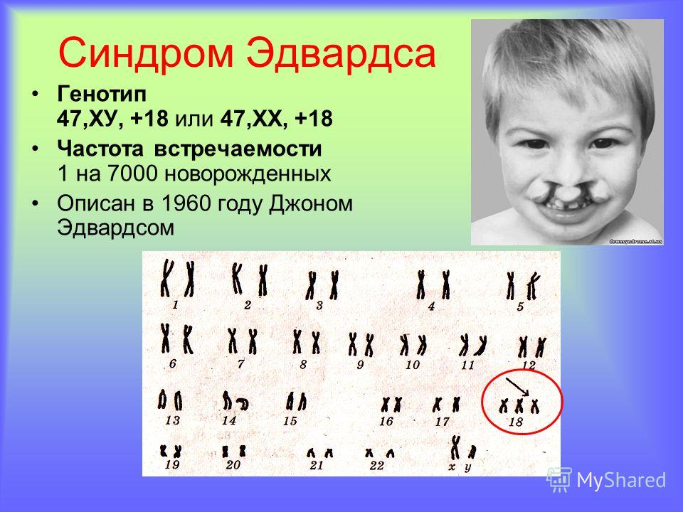 Синдром Эдвардса Генотип 47,ХУ, +18 или 47,ХХ, +18 Частота встречаемости 1 на 7000 новорожденных Описан в 1960 году Джоном Эдвардсом