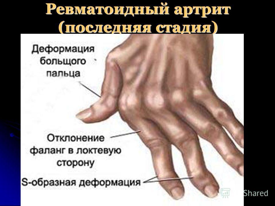 Ревматоидный артрит (последняя стадия)
