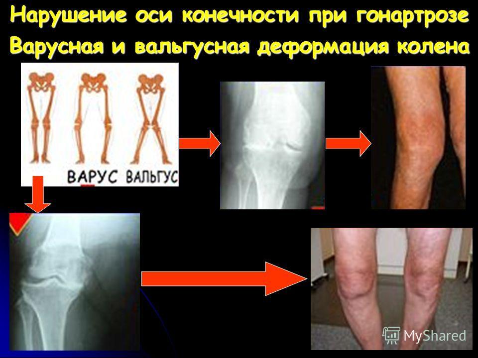 Нарушение оси конечности при гонартрозе Варусная и вальгусная деформация колена