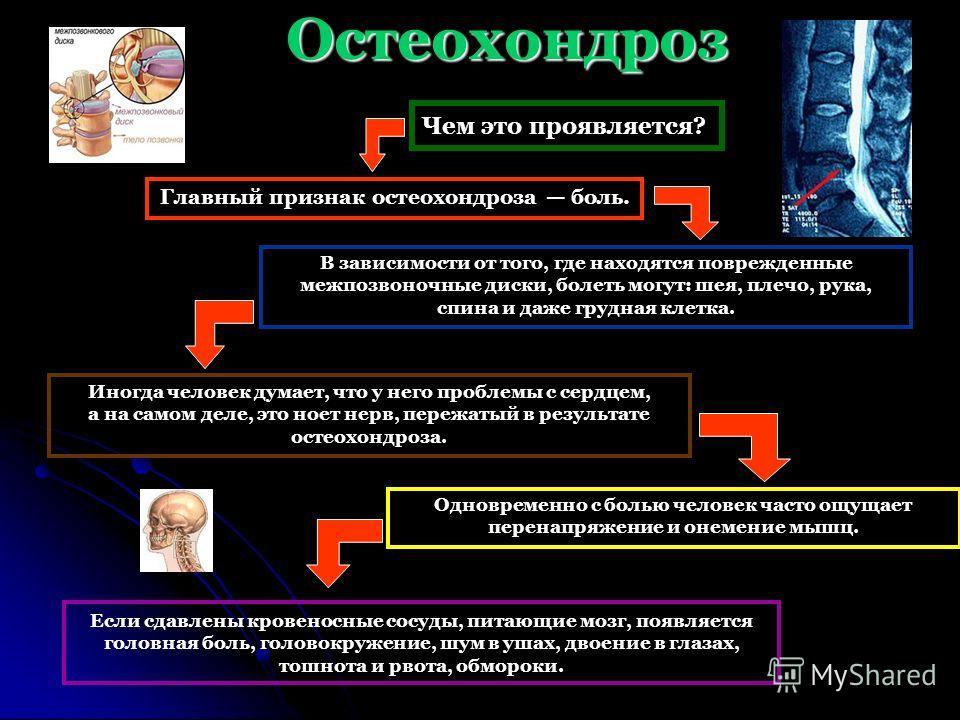 Остеохондроз Чем это проявляется? Если сдавлены кровеносные сосуды, питающие мозг, появляется головная боль, головокружение, шум в ушах, двоение в глазах, тошнота и рвота, обмороки. Главный признак остеохондроза боль. В зависимости от того, где наход