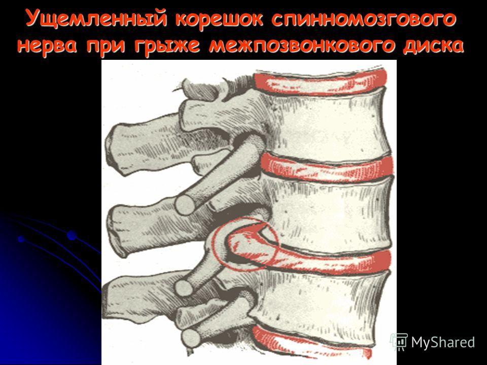 Ущемленный корешок спинномозгового нерва при грыже межпозвонкового диска