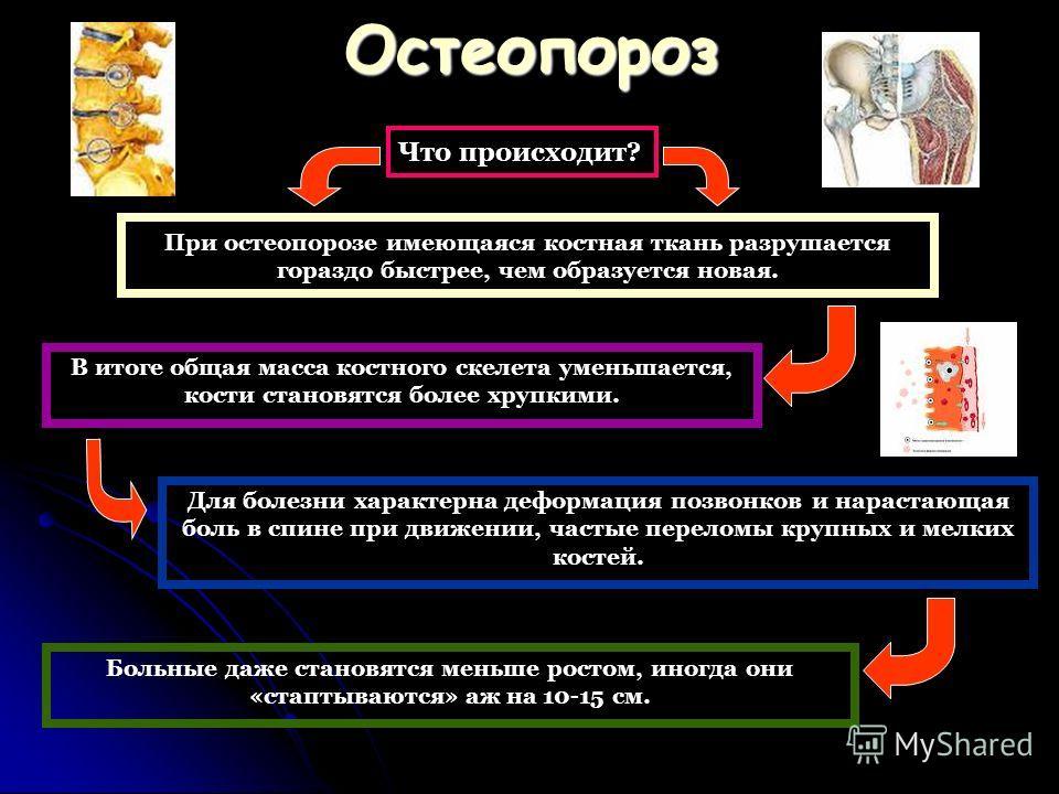 Остеопороз Что происходит? При остеопорозе имеющаяся костная ткань разрушается гораздо быстрее, чем образуется новая. В итоге общая масса костного скелета уменьшается, кости становятся более хрупкими. Для болезни характерна деформация позвонков и нар