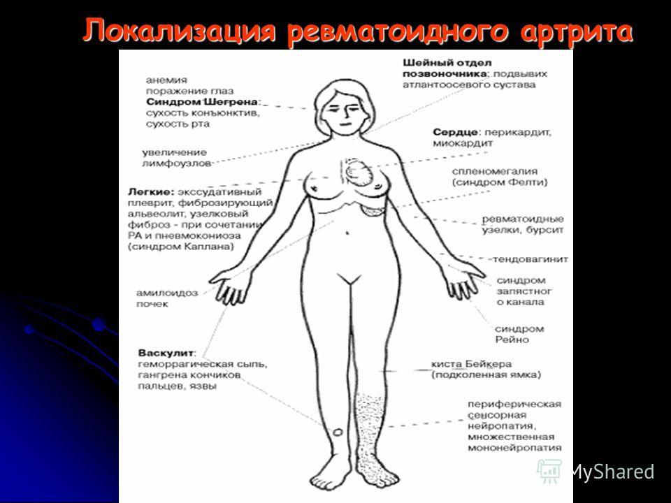 Локализация ревматоидного артрита