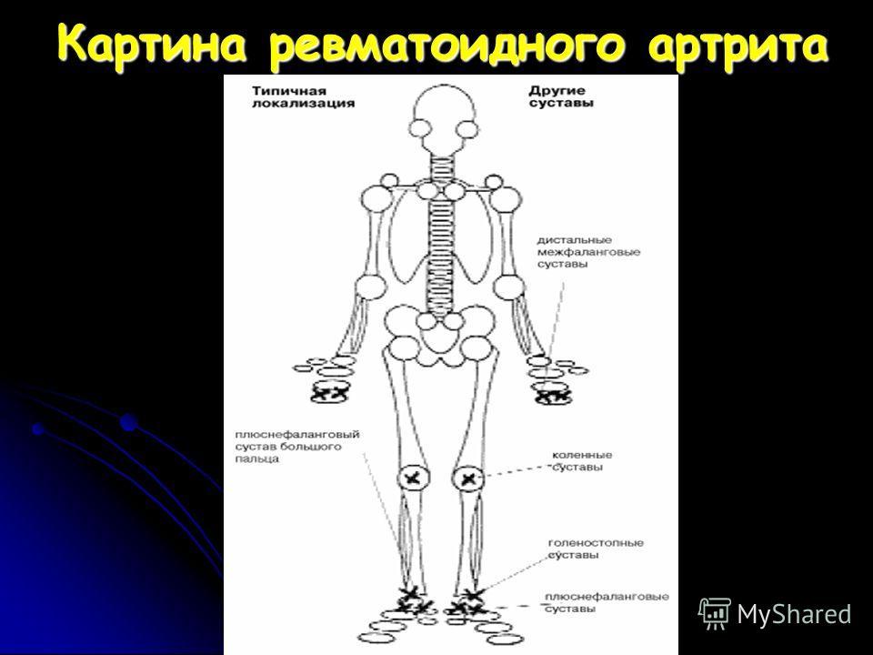 Картина ревматоидного артрита
