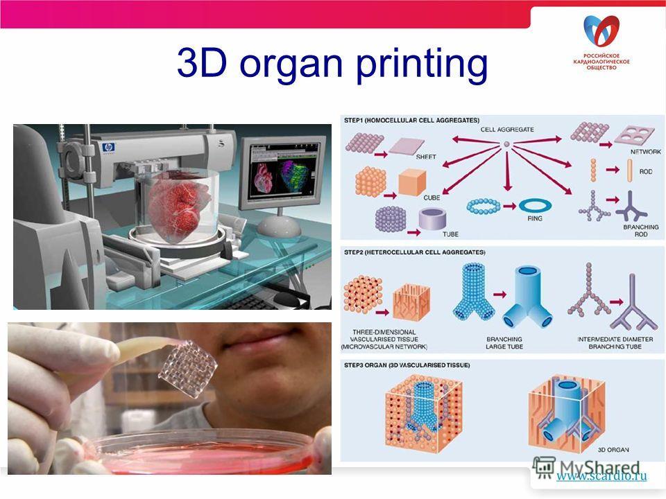 3D organ printing