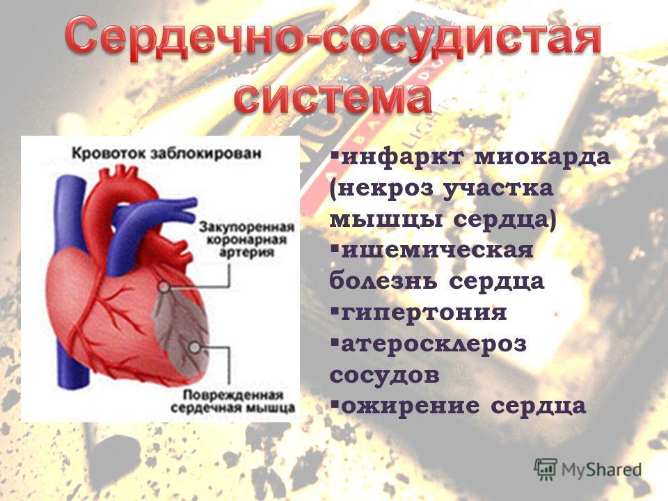 инфаркт миокарда (некроз участка мышцы сердца) ишемическая болезнь сердца гипертония атеросклероз сосудов ожирение сердца