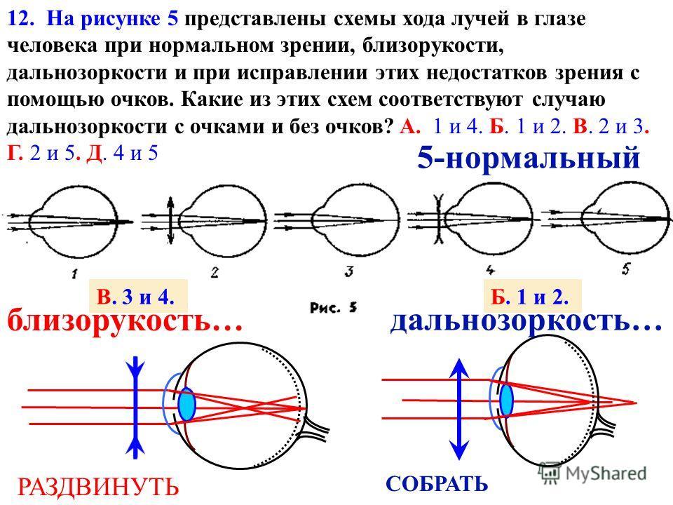F F Д Д = 123 Д 4 4 - нет 5 М 5 - лупа 3 - проектор 1 - фотоаппарат F 1 = 1 d + f 1 D = d f 11. Оптические приборы в микроскопе? В. L F