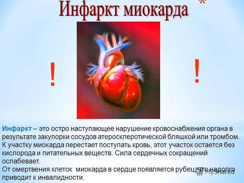 Инфаркт – это остро наступающее нарушение кровоснабжения органа в результате закупорки сосудов атеросклеротической бляшкой или тромбом. К участку миокарда перестает поступать кровь, этот участок остается без кислорода и питательных веществ. Сила серд