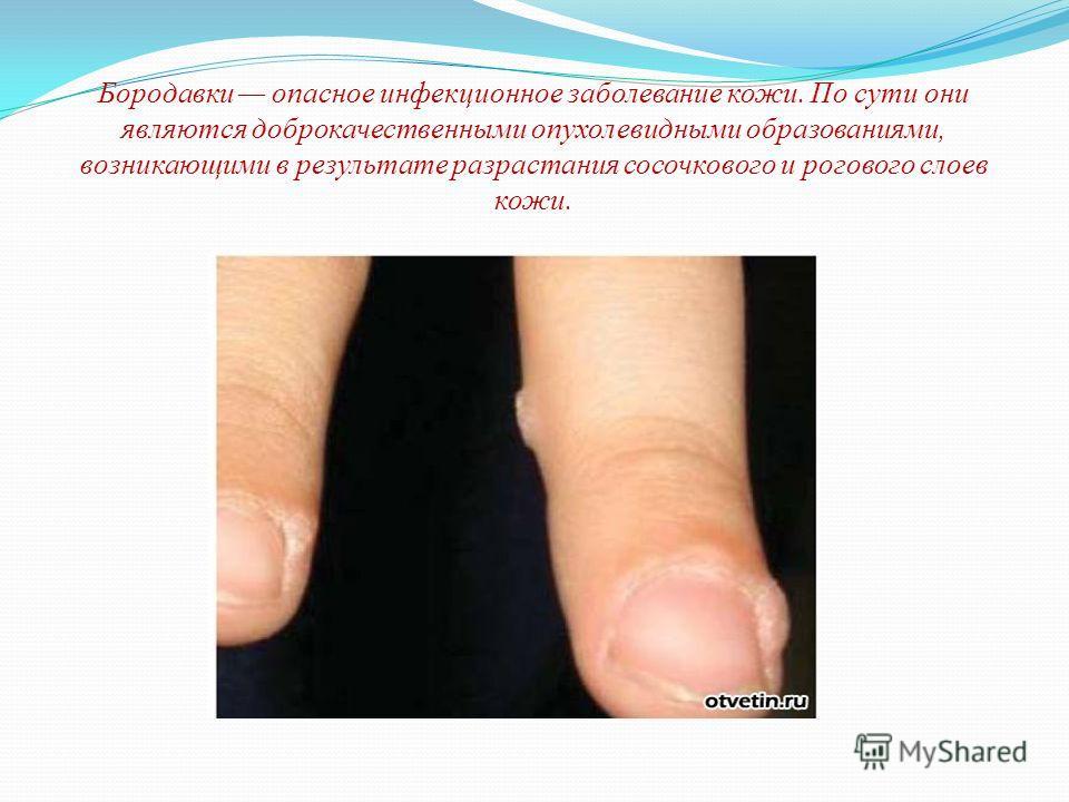 Бородавки опасное инфекционное заболевание кожи. По сути они являются доброкачественными опухолевидными образованиями, возникающими в результате разрастания сосочкового и рогового слоев кожи.
