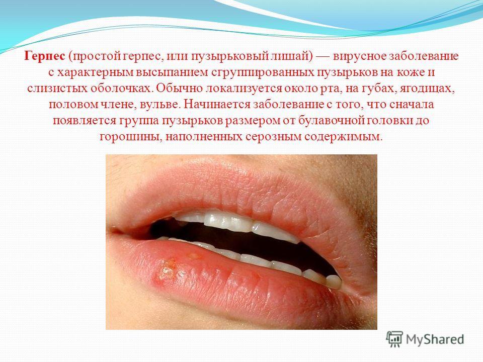 Герпес (простой герпес, или пузырьковый лишай) вирусное заболевание с характерным высыпанием сгруппированных пузырьков на коже и слизистых оболочках. Обычно локализуется около рта, на губах, ягодицах, половом члене, вульве. Начинается заболевание с т