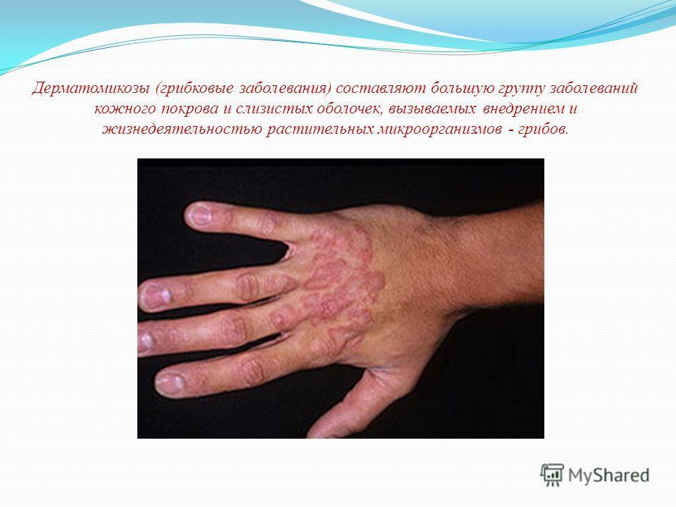Дерматомикозы (грибковые заболевания) составляют большую группу заболеваний кожного покрова и слизистых оболочек, вызываемых внедрением и жизнедеятельностью растительных микроорганизмов - грибов.