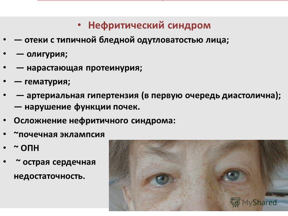 . Нефритический синдром отеки с типичной бледной одутловатостью лица; олигурия; нарастающая протеинурия; гематурия; артериальная гипертензия (в первую очередь диастолична); нарушение функции почек. Осложнение нефритического синдрома: ~почечная экламп