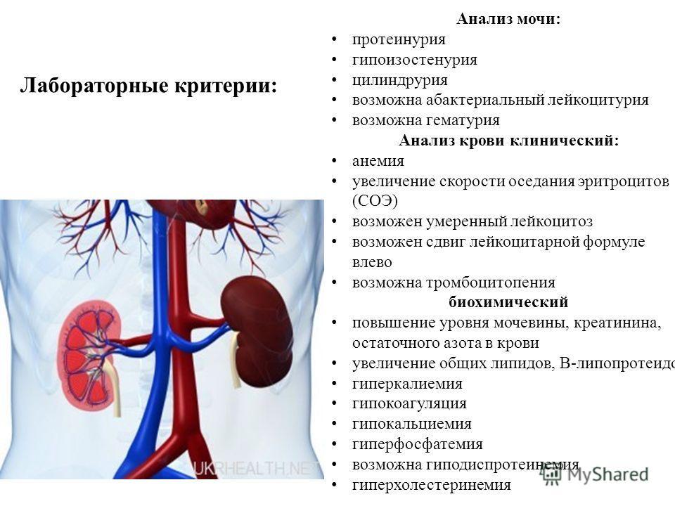 Анализ мочи: протеинурия гипоизостенурия цилиндрурия возможно абактериальный лейкоцитурия возможно гематурия Анализ крови клинический: анемия увеличение скорости оседания эритроцитов (СОЭ) возможен умеренный лейкоцитоз возможен сдвиг лейкоцитарной фо