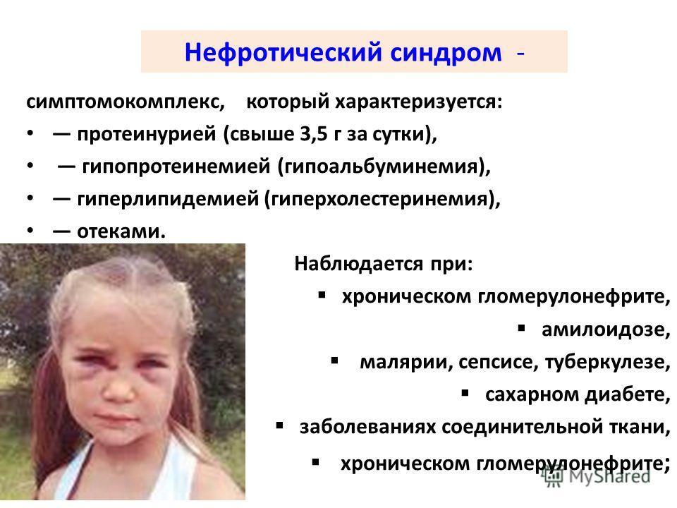 Нефротический синдром - симптомокомплекс, который характеризуется: протеинурией (свыше 3,5 г за сутки), гипопротеинемией (гипоальбуминемия), гиперлипидемией (гиперхолестеринемия), отеками. Наблюдается при: хроническом гломерулонефрите, амилоидозе, ма