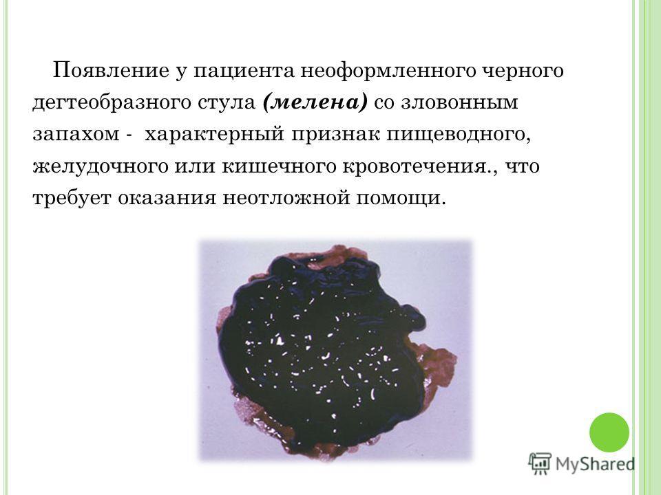 Появление у пациента неоформленного черного дегтеобразного стула (мелена) со зловонным запахом - характерный признак пищеводного, желудочного или кишечного кровотечения., что требует оказания неотложной помощи.