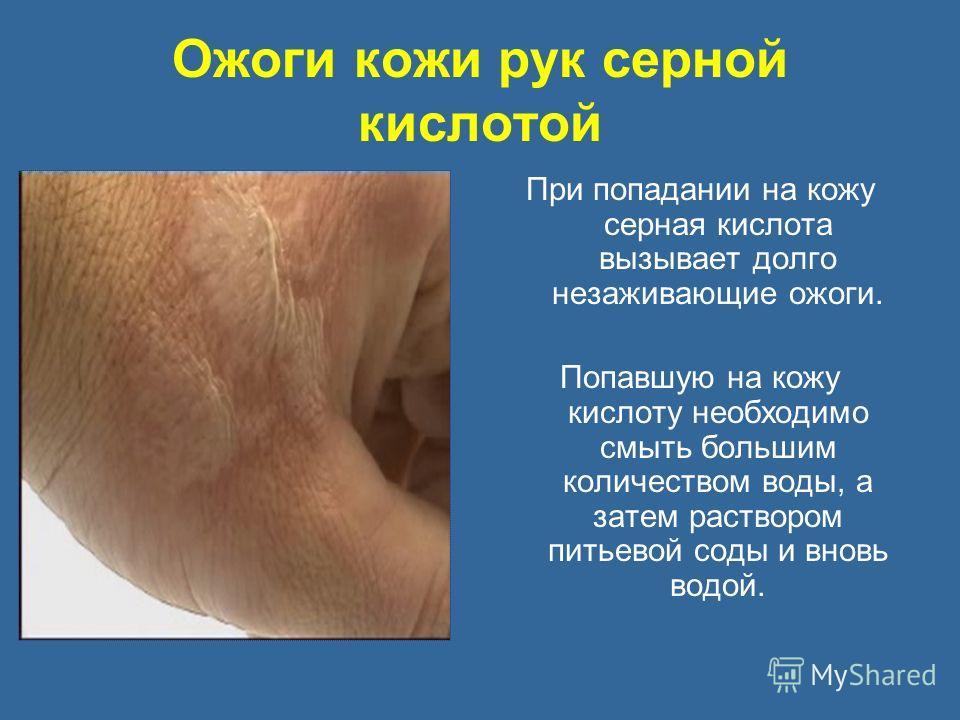 Ожоги кожи рук серной кислотой При попадании на кожу серная кислота вызывает долго незаживающие ожоги. Попавшую на кожу кислоту необходимо смыть большим количеством воды, а затем раствором питьевой соды и вновь водой.