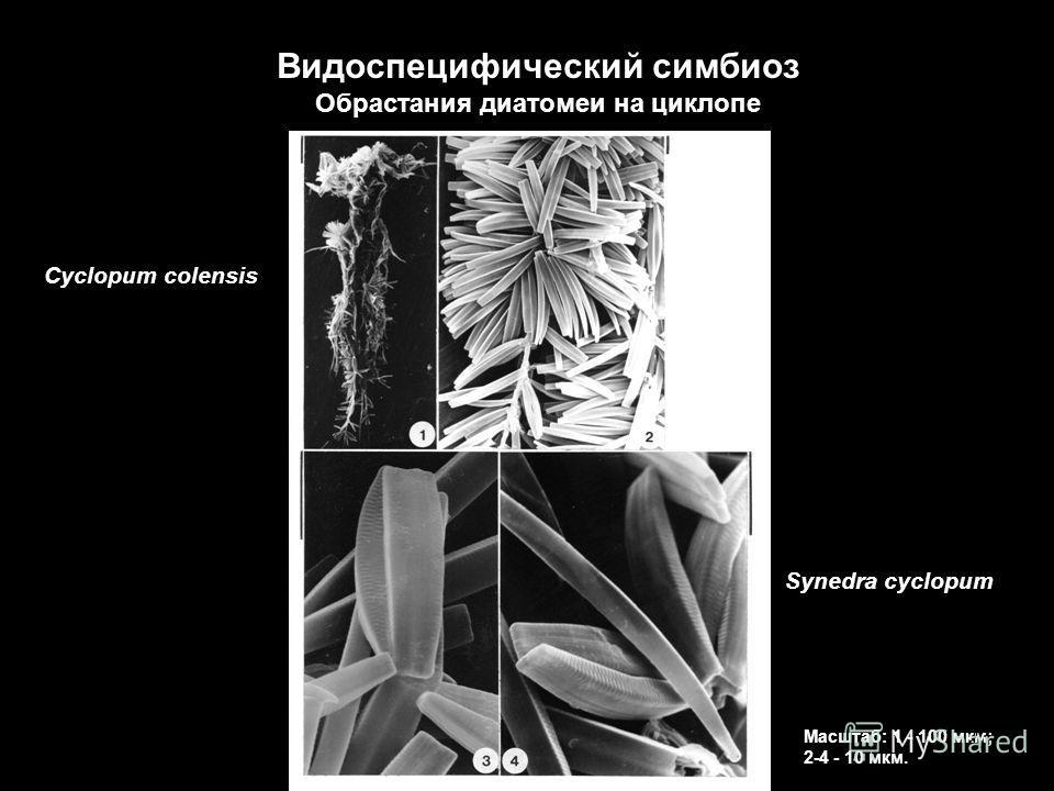 Synedra cyclopum Cyclopum colensis Масштаб: 1 - 100 мкм; 2-4 - 10 мкм. Видоспецифический симбиоз Обрастания диатомеи на циклопе 23